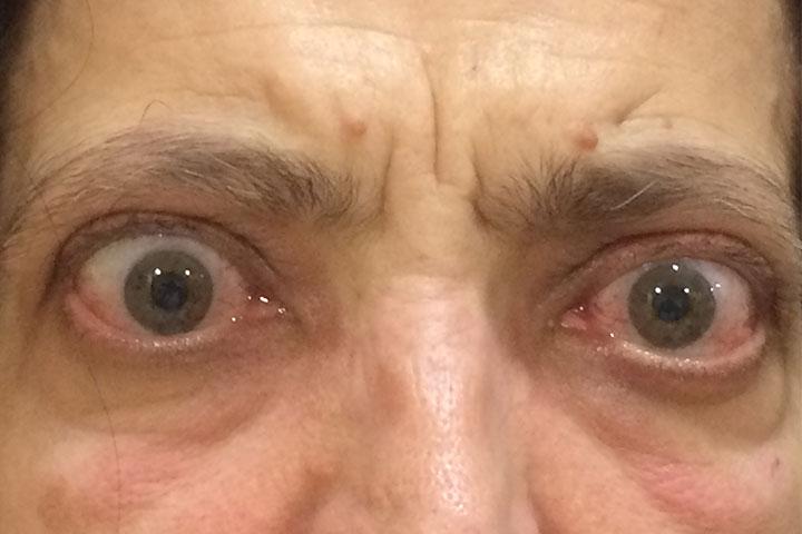 Όραση και Θυρεοειδής - Θυρεοειδική οφθαλμοπάθεια ('Νόσος Graves')