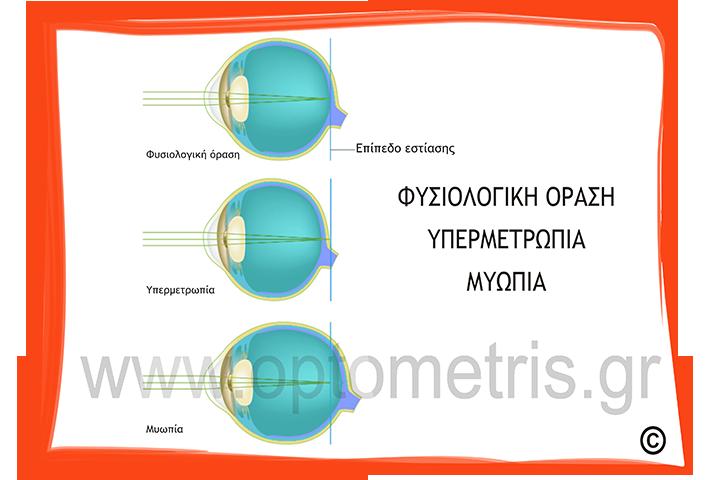 Τι είναι οι διαθλαστικές ανωμαλίες ή σφάλματα της όρασης