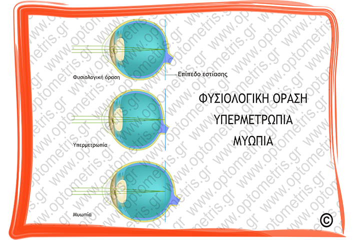 4b4503a22c Διαθλαστικές Ανωμαλίες της Όρασης