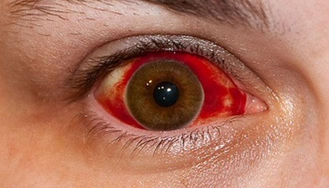 Αιμορραγία στο άσπρο του ματιού